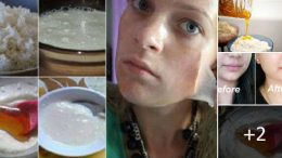 Yüz Ve Boyun Bölgesini Gençleştiren Pirinç Süt Bal Karışımı İle Mucize Maske