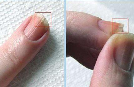 Tırnaklar Neden Kırılır ? Tırnak Kırılmasının Nedenleri
