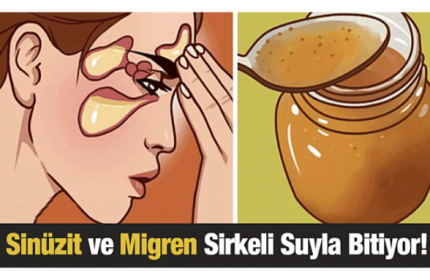 Sinüzit ve Migren Ağrılarına Son