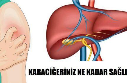 Sağlıksız Bir Karaciğere Sahip Olduğunuzun 5 Belirtisi