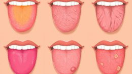 Dilinizdeki Bu Değişiklikler Sağlığınız Hakkında Uyarı Veriyor